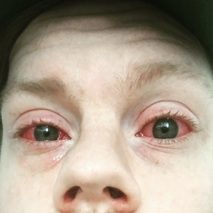A closeup of my eyes infected with conjunctivitis